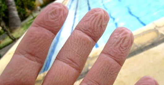 The phenomenon of wrinkles appearing on our fingers in water