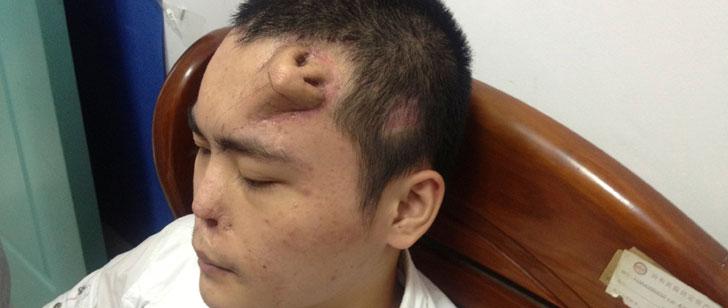 En 2013, un médecin chinois a fait pousser un nez sur le front d'un patient !